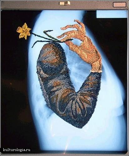 Вышитая анатомия Мэтью Кокса