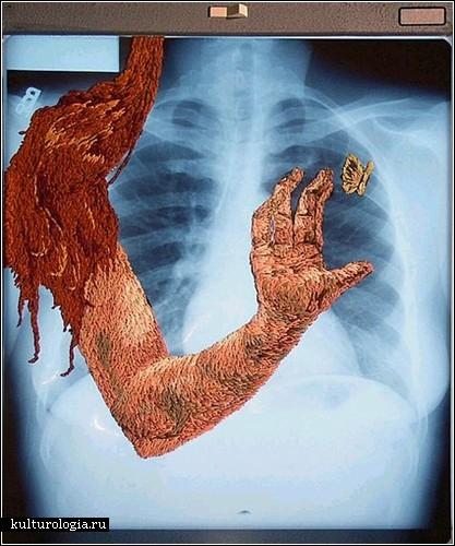 Хорист филадельфийской оперы Мэтью Кокс вышивает шелком на рентгеновских...