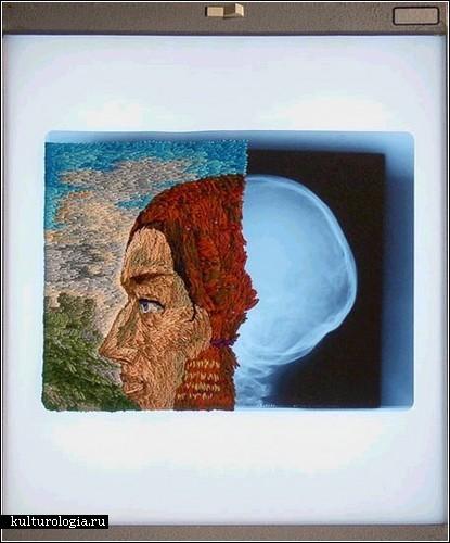 Вышитый рентгеновский снимок.Мэтью Кокс.