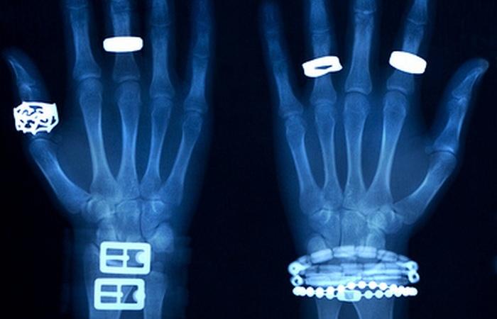 Рентген - способ определить подлинность.