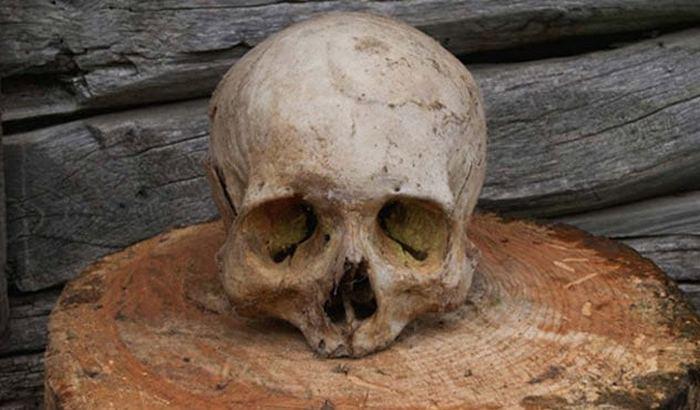 Трепанация черепа была известна ещё с древних времён.