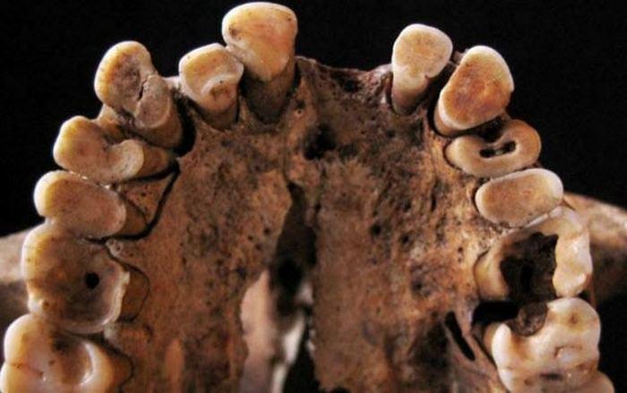 Древние тоже страдали от зубных проблем.