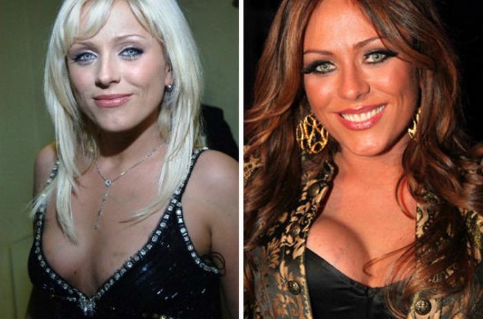 Юлия Началова до и после пластики груди.