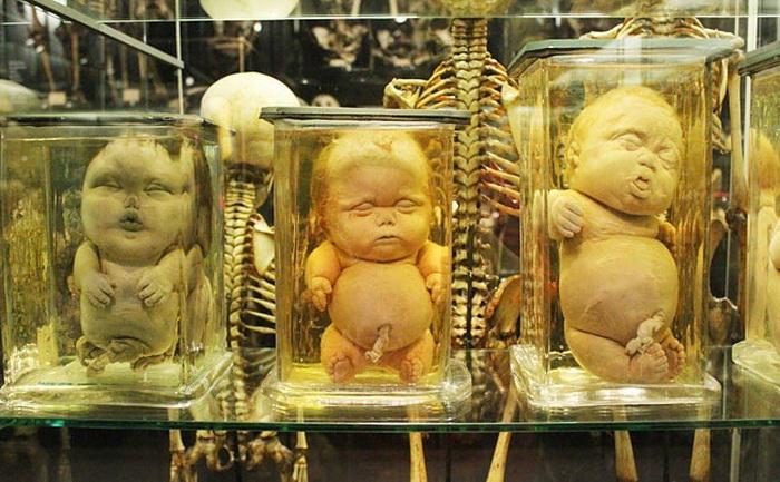 Человеческие патологии в музее Вролика
