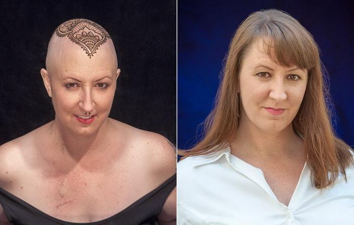 До и после: Энди Ласт - женщина, победившая онко