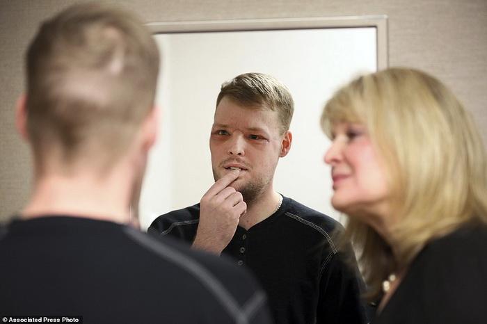 Энди Санднесс смотрит на себя в зеркало через три недели после операции