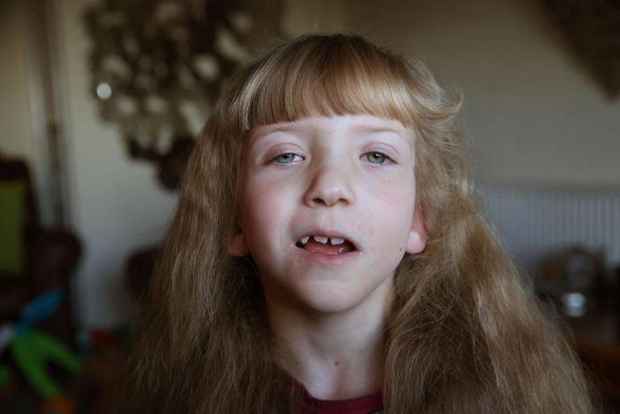 Дочь Руби. 6 лет. Физические отклонения в развитии.
