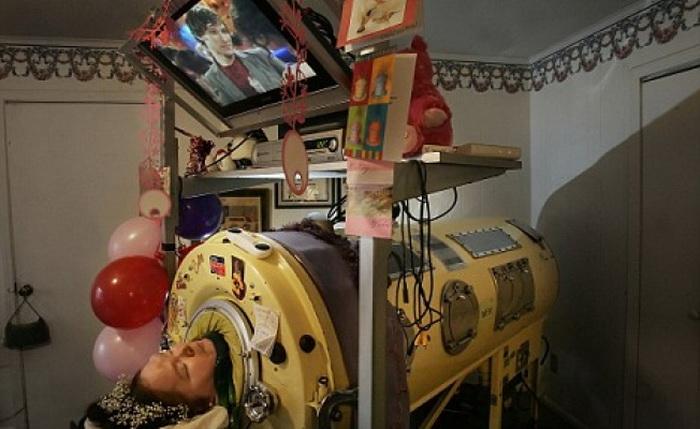 Диана Оделл - женщина, которая почти 60 лет прожила с железными легкими