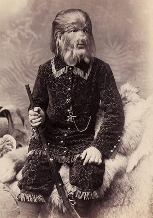 Федор Евтихеев - мужчина с редким заболеванием