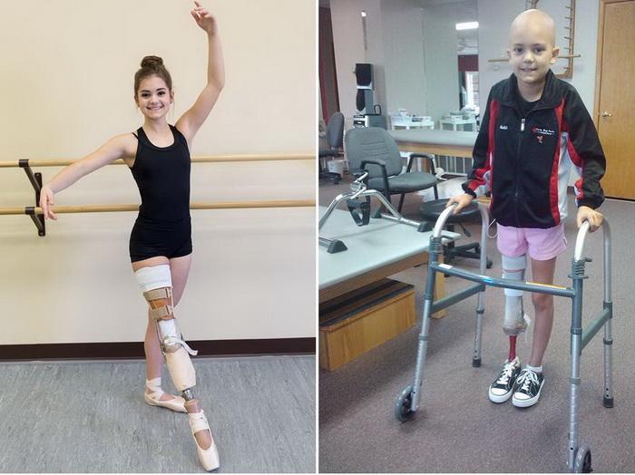 Габи Шалл - целеустремленная девушка-танцовщица, победившая рак