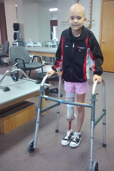 9-летняя Габи Шалл сразу после операции