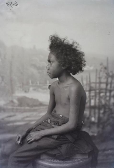 Документальное фото австралийца, которого содержали в человеческом зоопарке