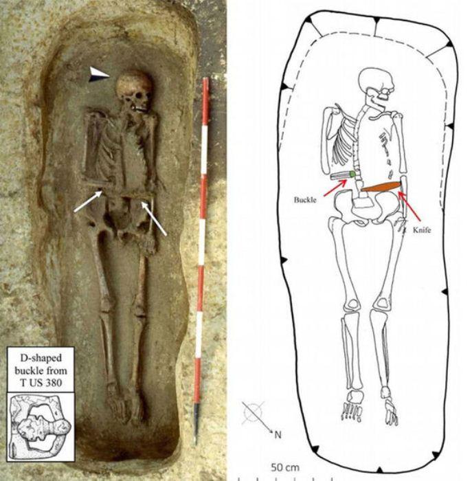 Скелет мужчины с протезом-ножом, обнаруженный археологами.