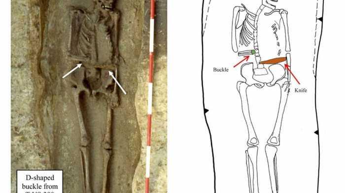 Деформация костей и расположение ножа.