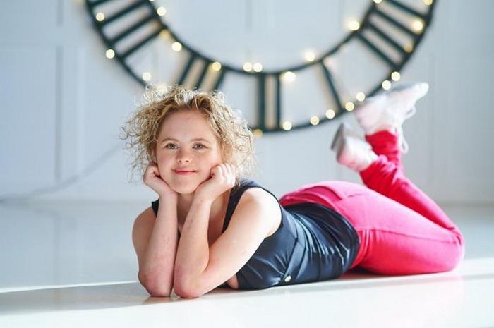 Лейсан Зарипова - девушка с синдромом Дауна, которая освоила профессию фитнес-тренера. Фото: wday.ru