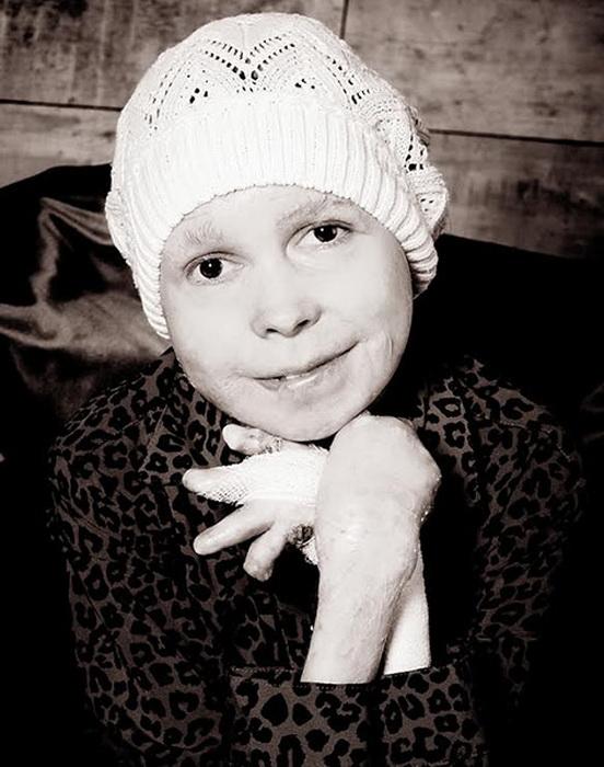 Надя Кузнецова - девушка с редкой болезнью