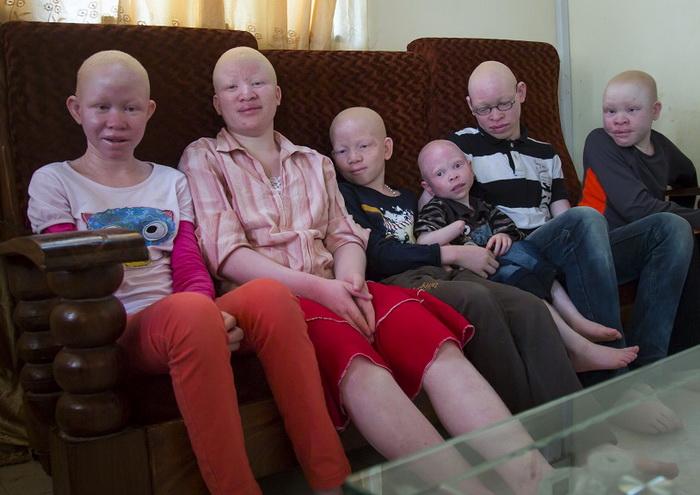 Приют для детей-альбиносов