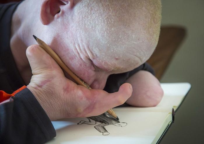 Парень со страшными травмами не теряет надежды стать художником