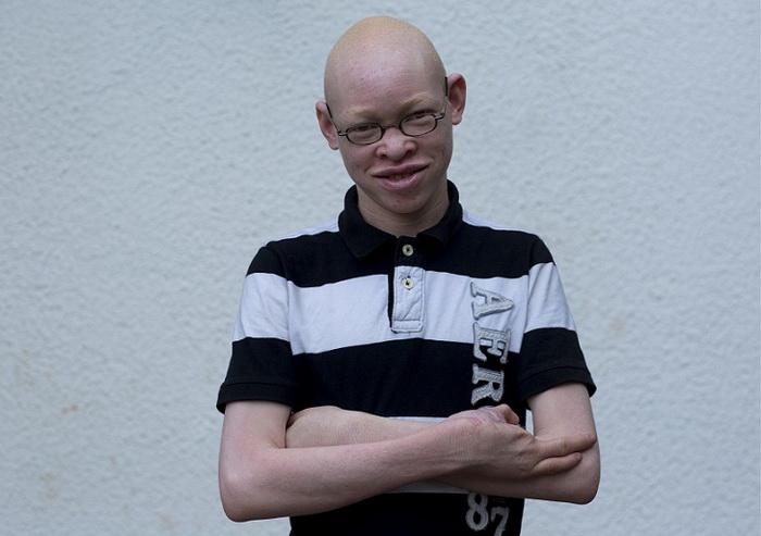 14-летнему парню отрубили пальцы отец, мачеха и старший брат