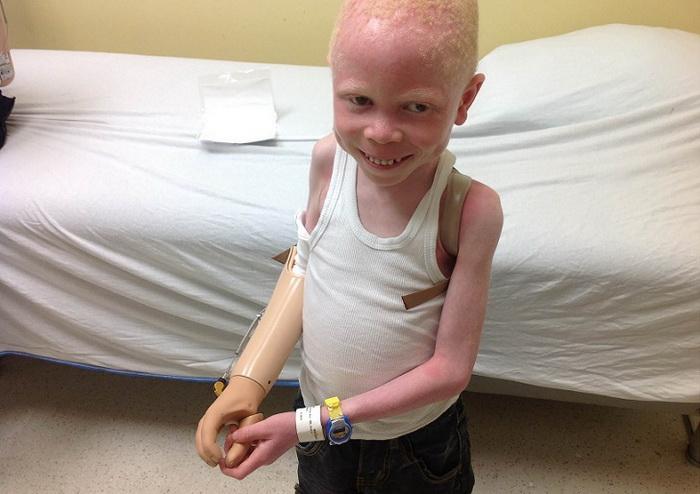 Отец и брат отрезали руку 6-летнему мальчику