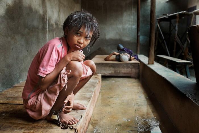 Жуткие условия жизни в психиатрических лечебницах в Индонезии
