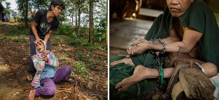 Ужасающие методы лечения: ноги мужчины обездвижены уже 9 лет
