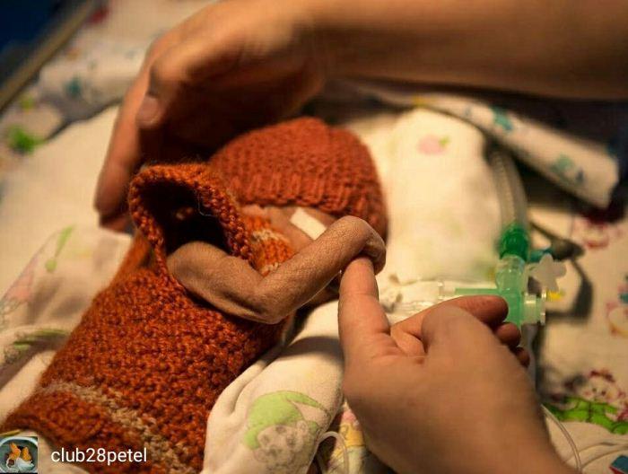 Недоношенные дети нуждаются в особой поддержке.