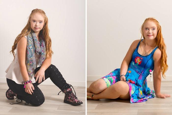 Девушка-модель с синдромом Дауна