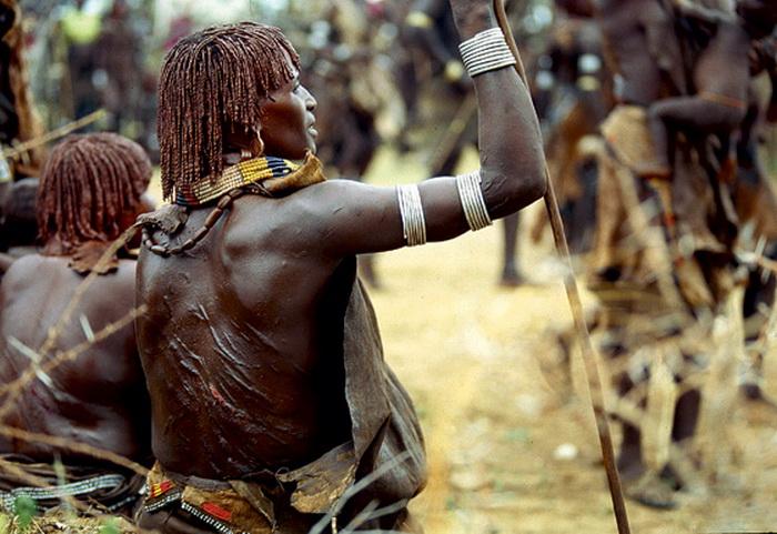 Шрамы на спине женщины