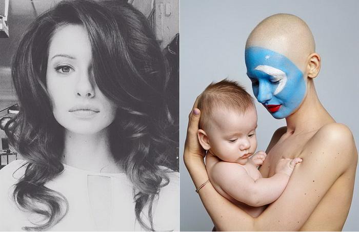 Елизавета Булохова: до и после болезни