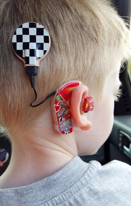 Мама превратила слуховой аппарат сына в модный аксессуар