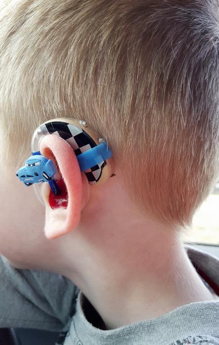 Тачки на слуховом аппарате