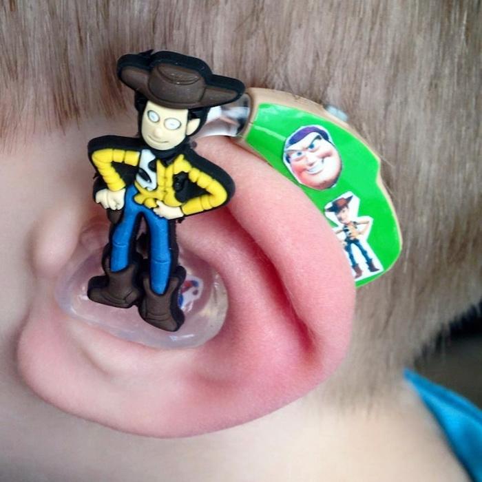 Модный дизайн слухового аппарата