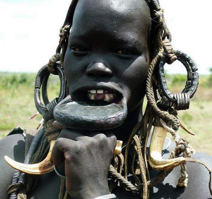 Женщинам выбивают передние зубы, чтобы поставить диск