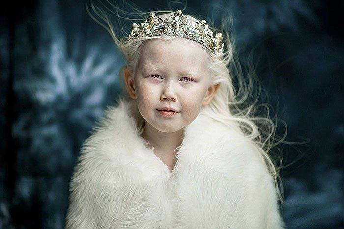 Нарияна - 8-летняя девочка-альбинос покоряет Интернет.