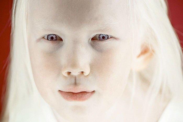 В роду Нарияны никогда раньше не было альбиносов.