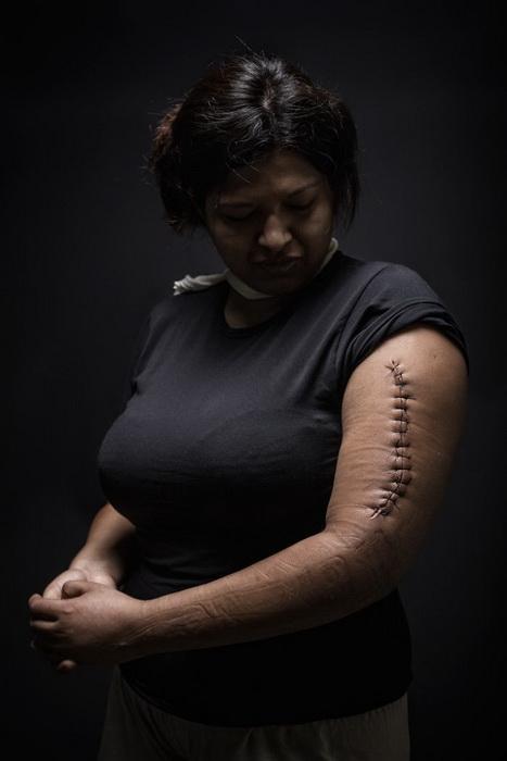Марина, 29 лет, иммигрант из Гондураса. В Мексике подверглась нападению, пострадала во время драки с мужчиной. который хотел ее изнасиловать