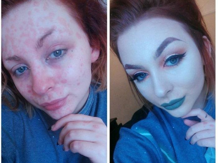 Девушка, страдающая от псориаза, стала профессиональным визажистом, чтобы выглядеть привлекательно