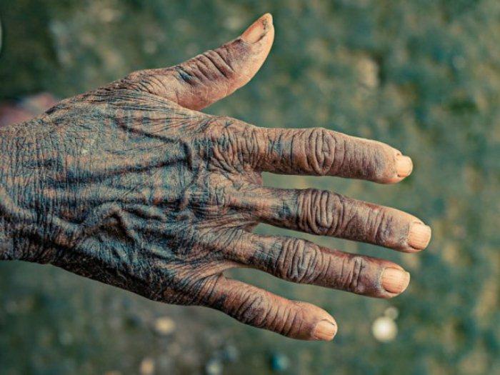 Женщины племени тхару наносят татуировки на руки и ноги.