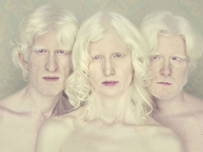 Фотопроект Albinos от Густаво Ласерда
