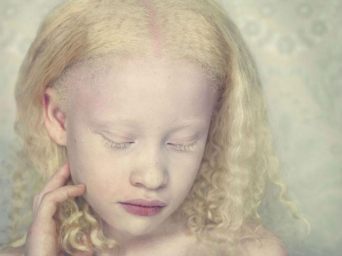 Фотопроект Albinos