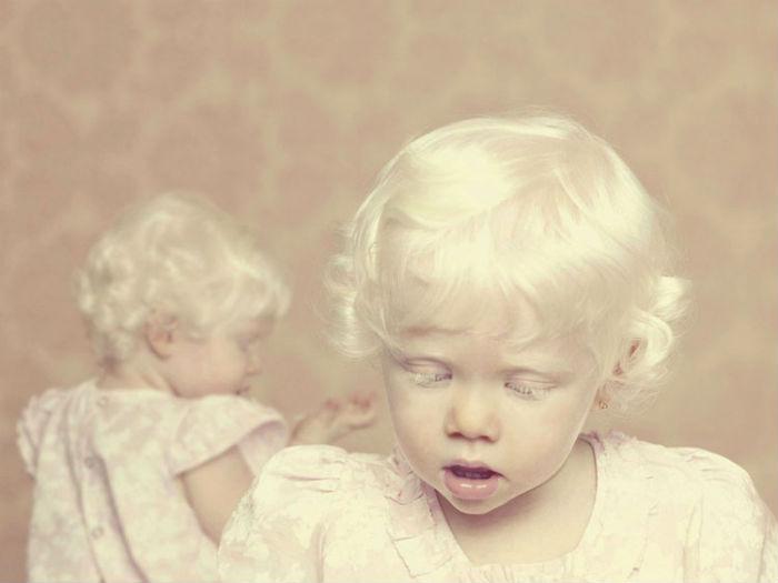 Фотограф работал над проектом Albinos несколько лет