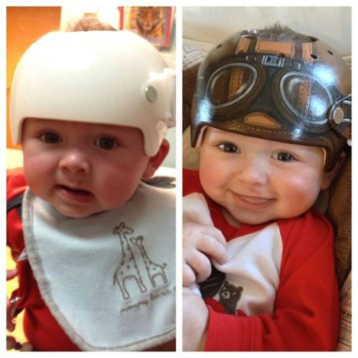 Корректирующие шлемы от Полы Строн