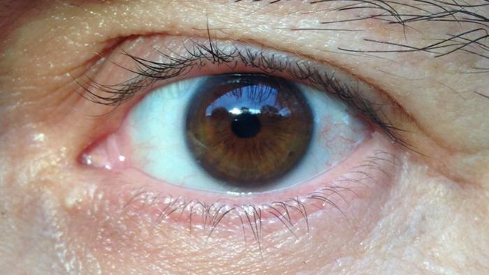 Изображения глаз от Redosking