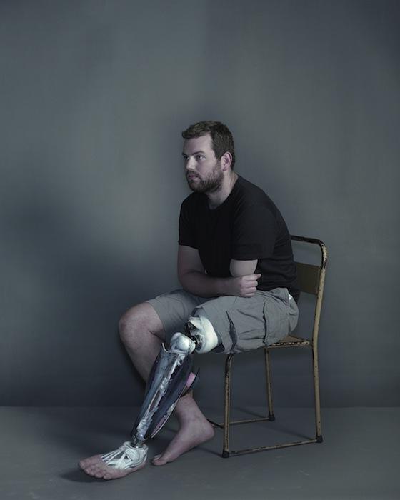 Рядовой Райан Сиари. Проект «Другие части тела» («Alternative Limb Project»). Фотография Надава Кандера для The New York Times Magazine