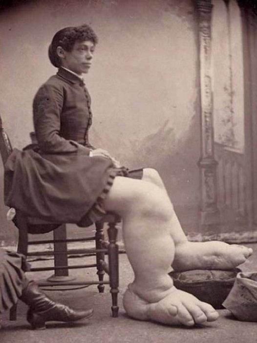 Fannie Mills - девушка с огромными отекшими ногами.