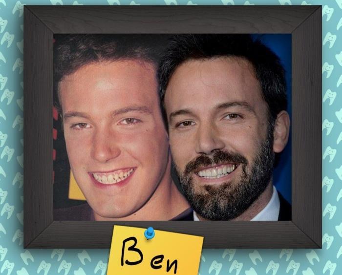 Ben Affleck - американский актер, режиссер, продюсер.
