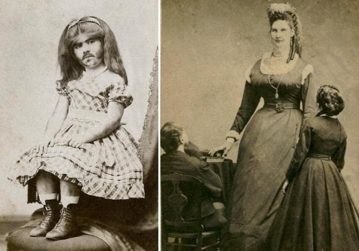 Женщины-циркачки, выступавшие в XIX веке.