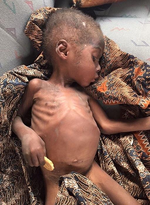 Этот ребенок стал жертвой предрассудков и был выброшен на улицу.