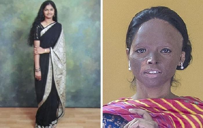 облитые кислотой до и после фото